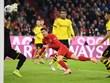 Những bàn thắng đẹp nhất của Lewandowski vào lưới Dortmund