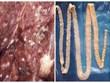 [Video] Sự nguy hiểm của sán lợn và cách phòng tránh lây nhiễm