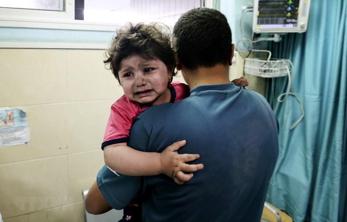 Một em bé Palestine bị thương chờ được điều trị tại bệnh viện al-Shifa, sau cuộc oanh tạc của máy bay Israel xuống Dải Gaza. (Ảnh: AFP/TTXVN)