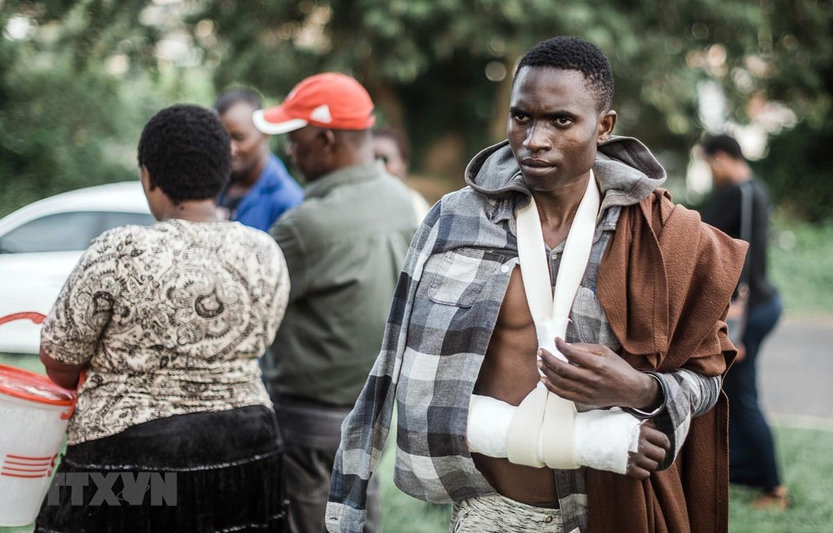 Anh Barnard Hamis đến từ Malawi bị thương trong vụ bạo lực tấn công người nước ngoài tại khu vực ngoại ô Durban, Nam Phi ngày 27/3. (Ảnh: AFP/TTXVN)