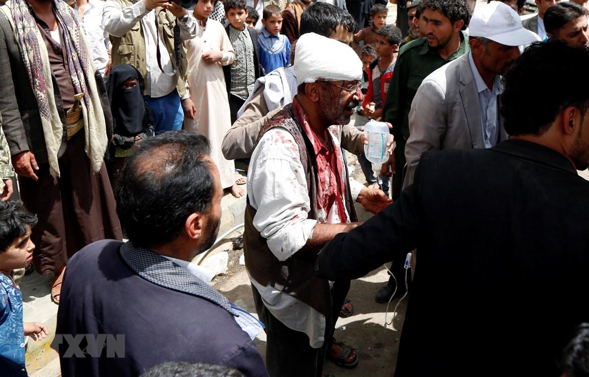 Nạn nhân bị thương tại hiện trường một vụ không kích ở Sanaa, Yemen, ngày 7/4/2019. (Ảnh: THX/TTXVN)