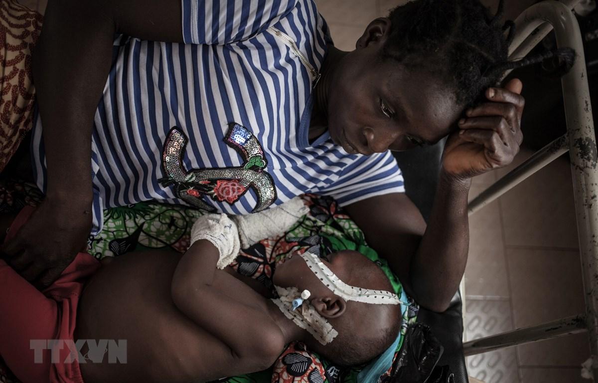Bệnh nhân nhiễm HIV điều trị tại bệnh viện ở Bangui, CH Trung Phi. (Ảnh: AFP/TTXVN)