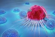 Thúc đẩy loạt biện pháp mới chống các bệnh không lây nhiễm