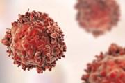 Cách đơn giản giúp gia tăng cơ hội sống sót cho trẻ bị ung thư máu