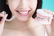 Niềng răng ở tuổi 30: Quyết định phi lý hay một sự đầu tư sinh lời?