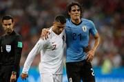 Đội tuyển Uruguay lo lắng về tình trạng chấn thương của Cavani