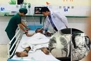 Bé trai 9 tuổi bị vỡ đại tràng do dùng máy bơm hơi vào hậu môn