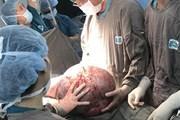 Bóc tách khối u buồng trứng nặng 20kg cho một nữ bệnh nhân