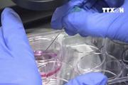 Colombia phát triển kỹ thuật mới chống đào thải sau ghép tạng