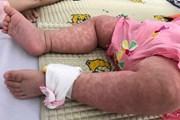 [Video] Nhiều trẻ mắc bệnh sởi do chưa được tiêm chủng