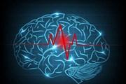 """Các nhà nghiên cứu Hàn Quốc tạo ra """"lưu huyết não đồ"""" mới"""