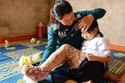 Viện nghiên cứu Mỹ khen ngợi Việt Nam thanh toán được bệnh chân voi