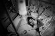 Bài 3: Ước mơ chưa tròn và những ca mổ đau đớn của cô bé chân voi