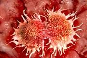 [Video] Những hiểu lầm và cách phòng chống bệnh ung thư