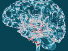 Xét nghiệm máu để chẩn đoán sớm dấu hiệu của bệnh Alzheimer