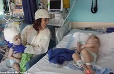 Cặp sinh đôi dính liền đầu hồi phục thần kỳ sau ca phẫu thuật