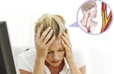 Chớ chủ quan với chứng đau đầu khi thời tiết thay đổi