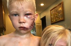 Bảo vệ em gái khỏi chó dữ, cậu bé 6 tuổi bị khâu 90 mũi