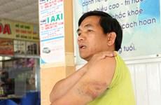 Đắk Nông: Điều tra Chánh Văn phòng Huyện ủy Tuy Đức hành hung lái xe