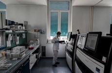 Italy đẩy mạnh các xét nghiệm kháng thể chống virus SARS-CoV-2
