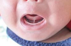 Hàng trăm trẻ bị chậm nói do dị tật dính phanh lưỡi