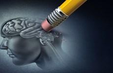 Chile phát triển bộ xét nghiệm nhanh phát hiện bệnh Alzheimer