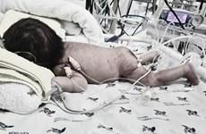 Phối hợp phẫu thuật thành công bướu quái khổng lồ cho bé sơ sinh