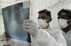 Gần 40 người tử vong vì virus cúm A H1N1 ở Ai Cập
