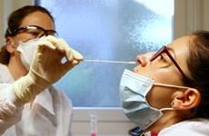 Mỹ cho phép tiến hành xét nghiệm COVID-19 bằng mẫu phẩm lấy tại nhà