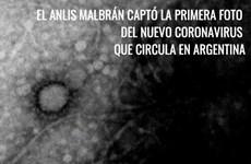 Argentina chụp được hình ảnh virus SARS-CoV-2 lây nhiễm trong nước