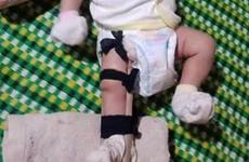 [Video] Tình tiết mới nghi án bé trai 2 tháng bị cha đánh gãy chân