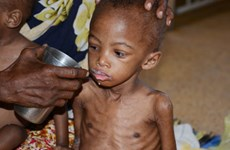 UNICEF: 1 triệu trẻ em châu Phi bị suy dinh dưỡng nghiêm trọng