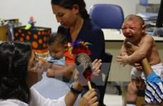 Brazil: Gần 5.000 ca mắc hội chứng đầu nhỏ nghi do virus Zika