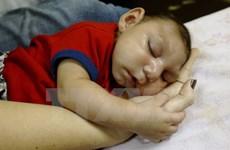 Số trẻ sơ sinh bị mắc bệnh đầu nhỏ tại Brazil tiếp tục tăng mạnh