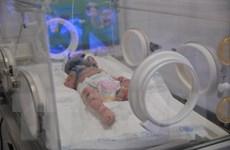 Điều trị cho bé trai 2 tháng tuổi mắc bệnh da vảy cá hiếm gặp
