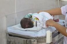 Phẫu thuật cắt khối u khiến trẻ sơ sinh liên tục nôn ra sữa sau bú