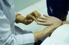 Kiểm tra công tác điều trị bệnh tay chân miệng tại TP Hồ Chí Minh