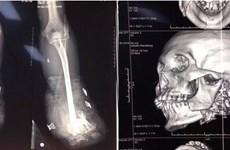 Nam thanh niên bị cụt hai tay, gãy xương hàm vì tự chế pháo nổ