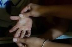 Hơn 400 học sinh bị ngứa người và chân tay chưa rõ nguyên nhân