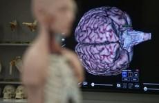 Singapore lập ngân hàng não, mở đường cho các công trình nghiên cứu
