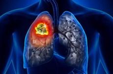 Ứng dụng trí tuệ nhân tạo hỗ trợ chẩn đoán bệnh ung thư phổi