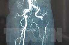 Cảnh báo nguy cơ tắc động mạch chi cấp tính khi bị tê bì chân tay
