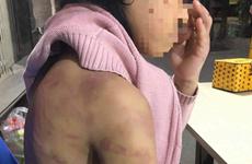 Truy tố người mẹ và tình nhân hiếp dâm, hành hạ con đẻ tại Hà Đông