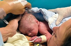 Người phụ nữ đầu tiên sinh con từ tử cung được cấy ghép