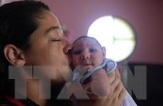 Brazil phát hiện virus Zika trong não của trẻ bị bệnh đầu nhỏ