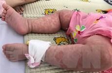 WHO cảnh báo xu hướng bệnh sởi gia tăng trên toàn thế giới