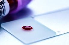 Thiết bị đột phá giúp phát hiện ung thư chỉ qua một giọt máu