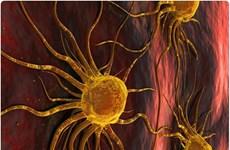 Ung thư là nguyên nhân gây tử vong hàng đầu tại các nước giàu