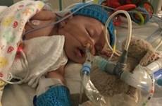 Trung Quốc ghép tim thành công cho bé gái hơn 2 tháng tuổi