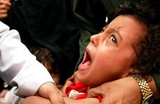 Mỹ: Nguy cơbùng phát bệnh sởi tại bang California